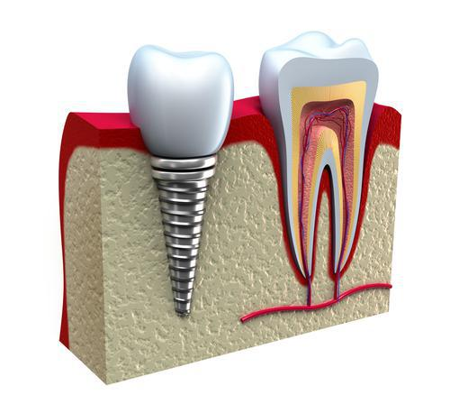 Display of dental implant in the mouth.