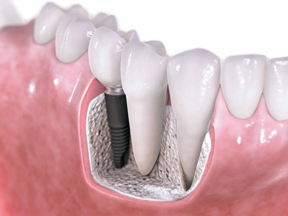 graphic of dental implants