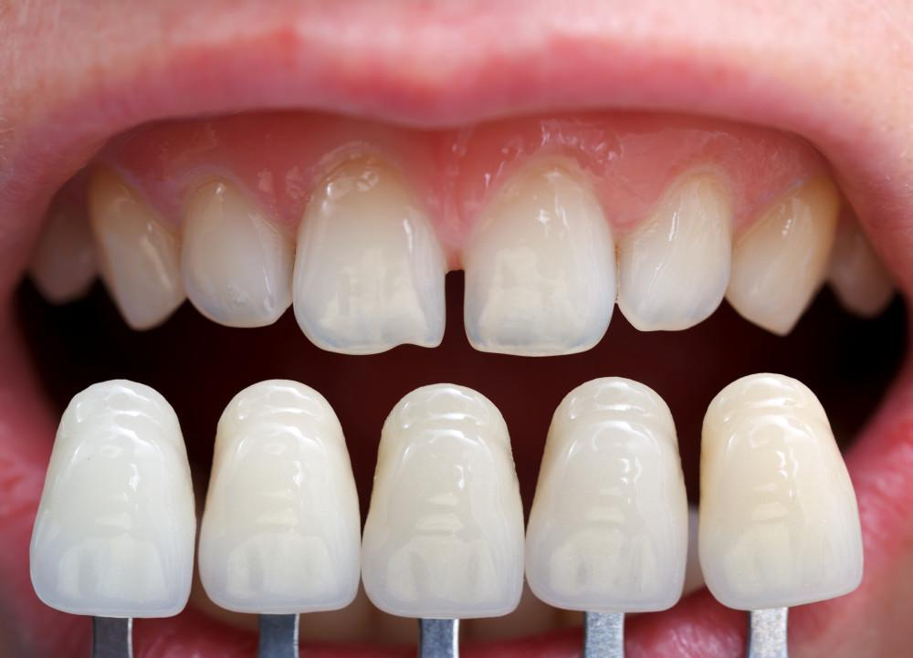 comparison of natural teeth and dental implants