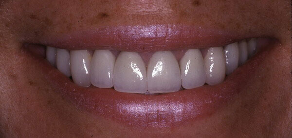 bright smile after treatment