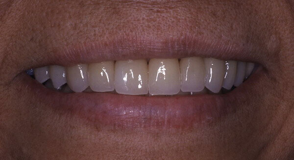 after treatment smile