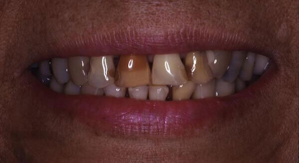 crooked and yellow teeth before treatment