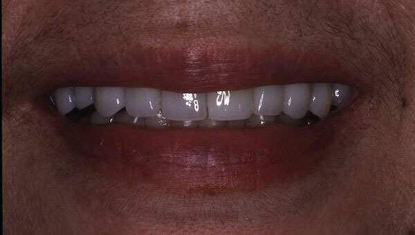 teeth after treatment