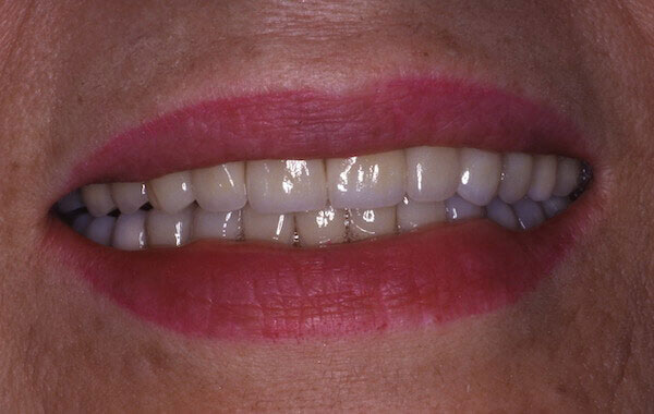 straight teeth after treatment