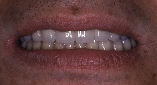 white teeth after treatment