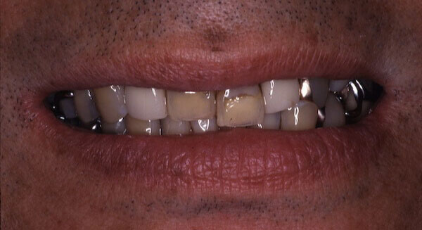 yellow, uneven teeth before treatment