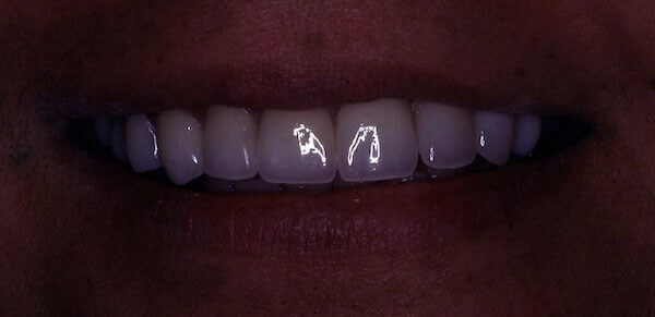white teeth after dental treatment