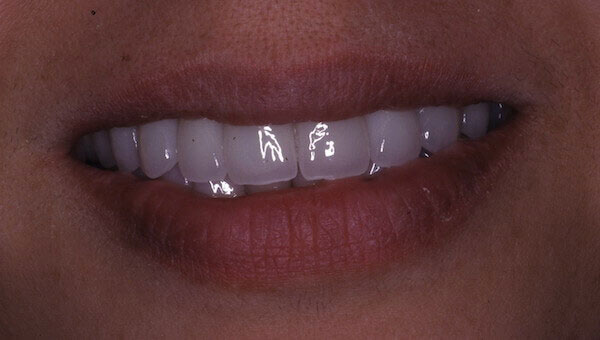 straight and white teeth after photo